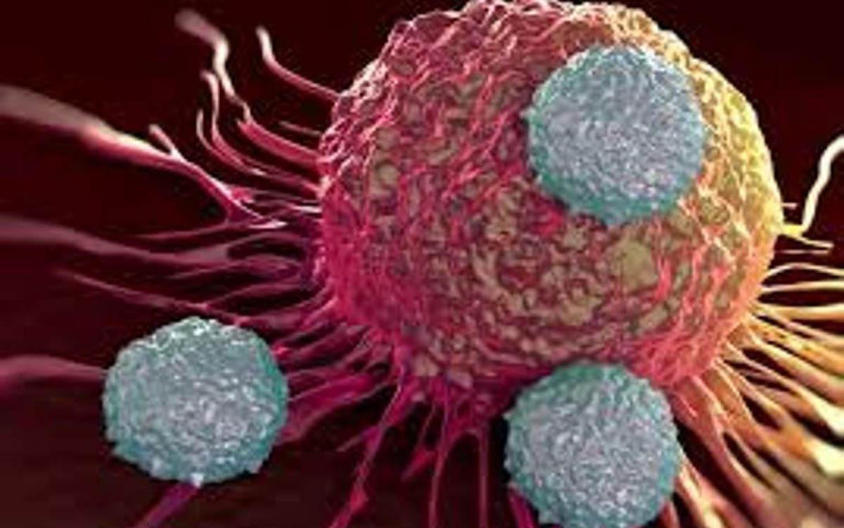 سالانه ۱۱۲هزار نفر مبتلا به سرطان می شوند/۶۰ درصد ایرانیان اضافه وزن دارند