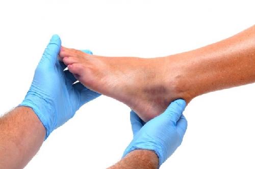 درمان صافی کف پا در بزرگسالان به علت از بین رفتن قوس طولی مفاصل پا
