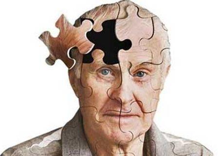 داروی آلزایمر پس از ۲۰سال به تایید رسید